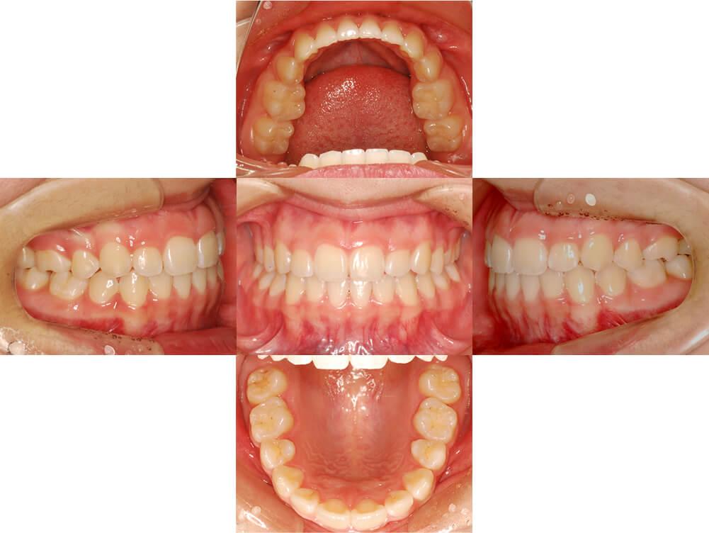 歯科矯正治療例後