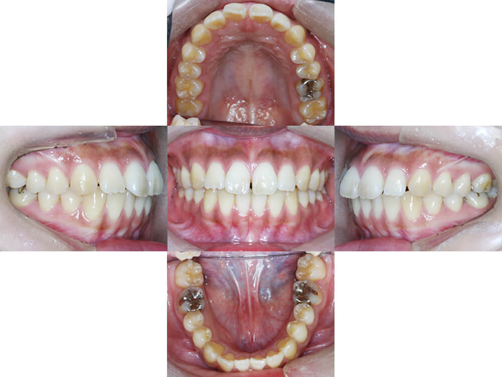 歯科矯正治療例前