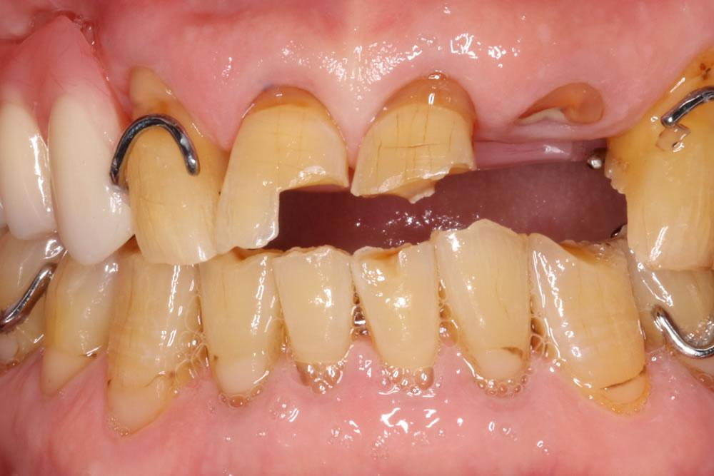 前歯が折れた状態