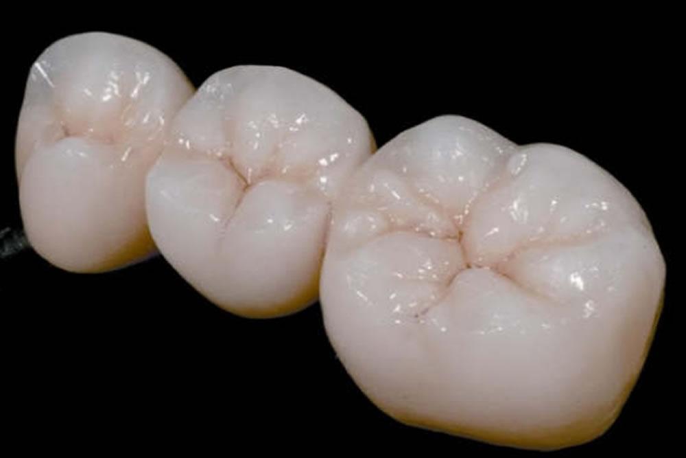 歯の見た目