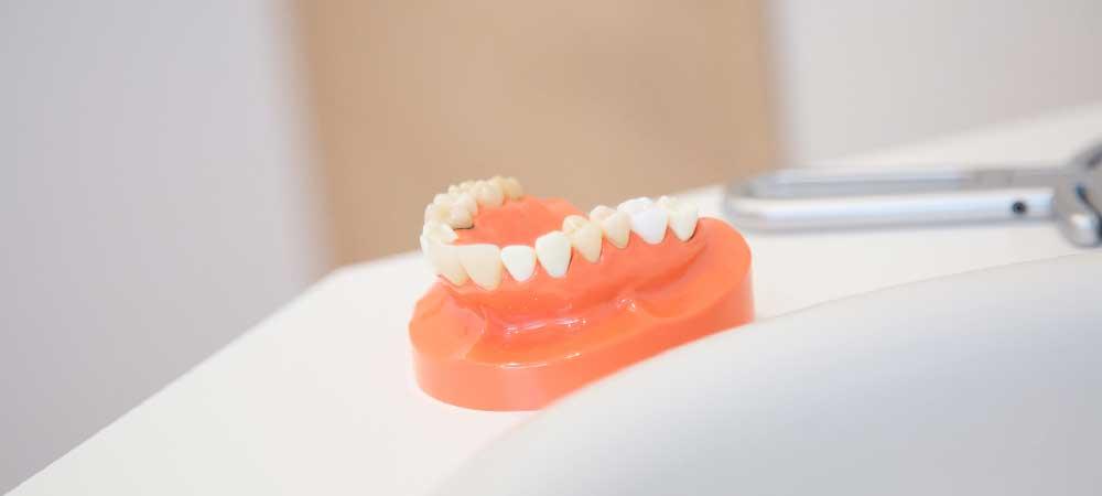 歯科技工士が製作