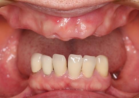 歯がほとんど残っていない
