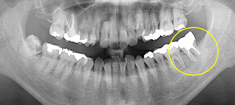 奥歯の抜歯