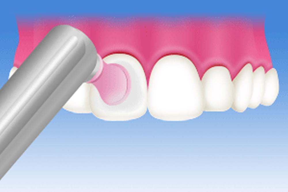 歯のメンテナンス