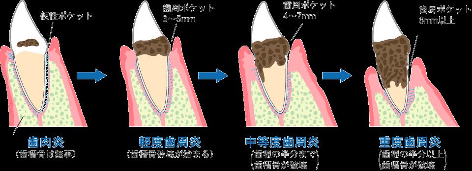 歯周病の治療の仕方