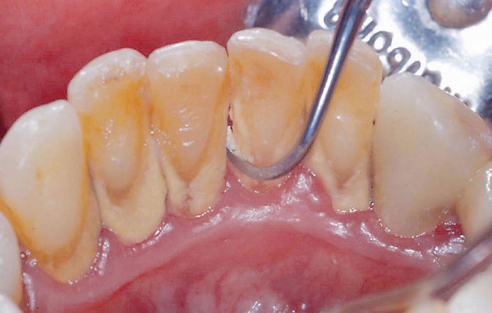 軽い歯周病