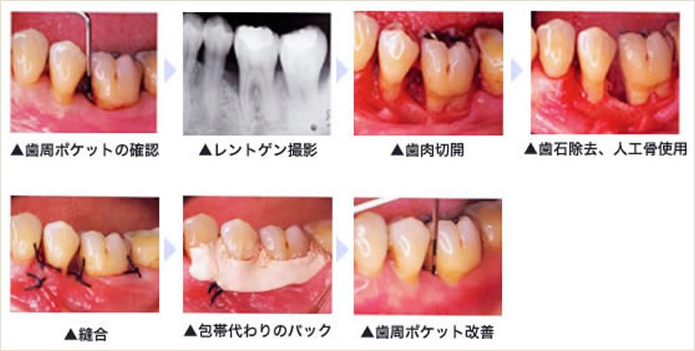 重い歯周病